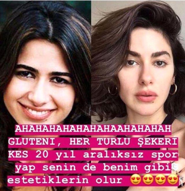 Ünlü oyunu Nesrin Cavadzade, sosyal medyadan gelen estetikli yorumlarına yüz güldüren bir cevap verdi.