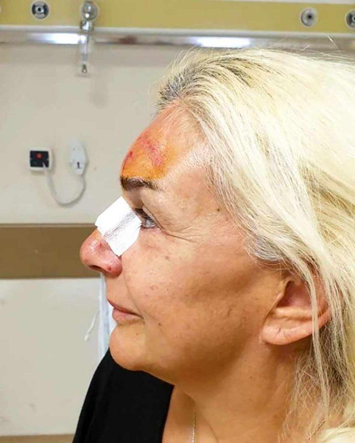 Burçin Orhon, baygınlık geçirirken yüzüstü düştü. Alnında ve burnunda ciddi yaralar oluşan Orhon, yüzünün son halini Instagram hesabından paylaşarak kendisine nazar değdiğini söyledi.